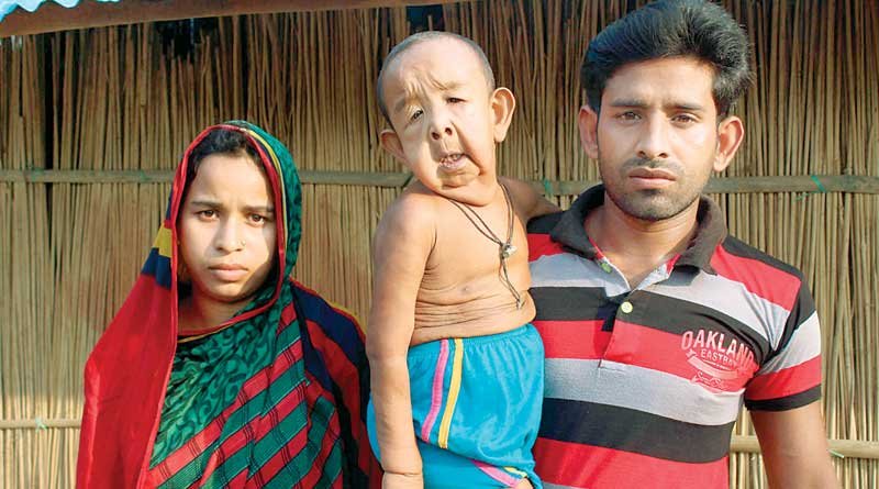 rare disease, 4 yrs child looks like 80 yrs
