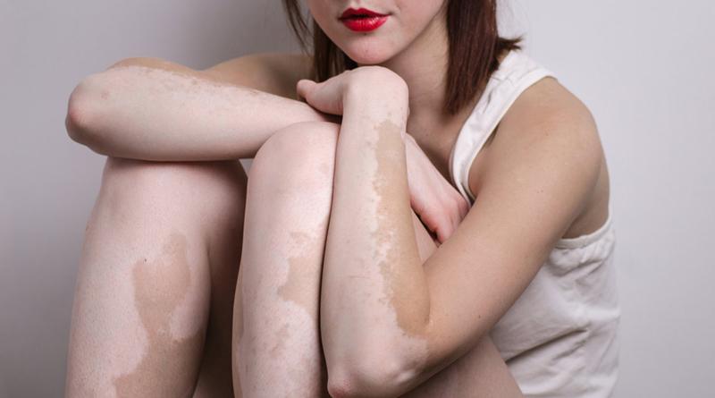 Vitiligo- Causes, Signs, Symptoms And Treatments