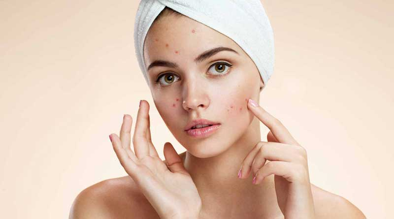 People With Acne Are Better Protected Against Ageing, Study Says
