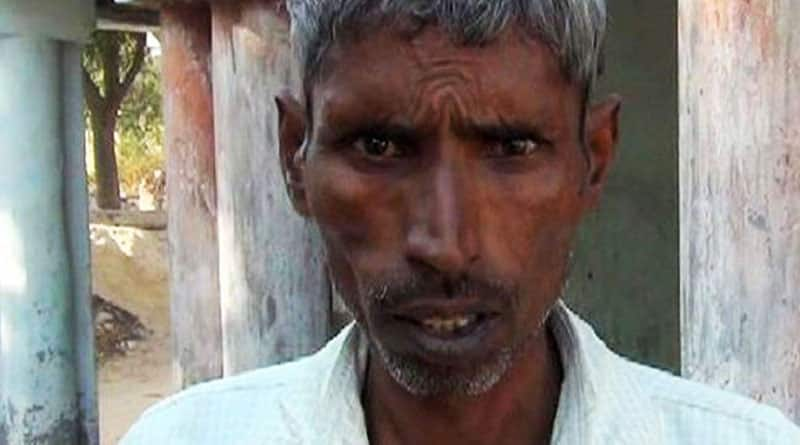 UP man claims to have undergone sterilization to exchange Rs 2,000