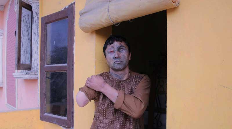 India Healing Terror Struck Afghan Soldiers