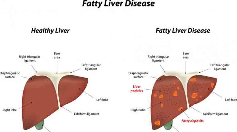 liver_web