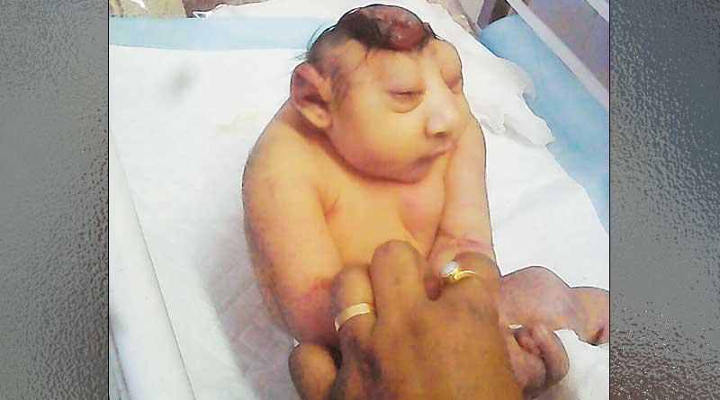 'Monster Baby' born in Kolkata hospital, Doctors stunned
