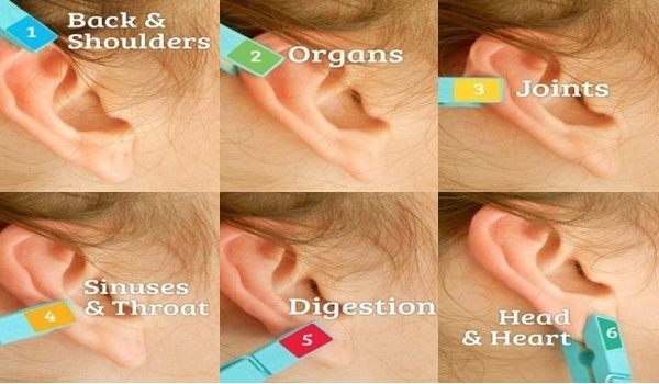 this-incredible-pain-relief-method-is-as-simple-as-putting-a-clothespin-on-your-ear