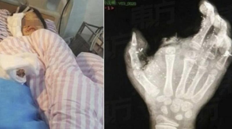 Mobile phone blast rips minor boy's finger