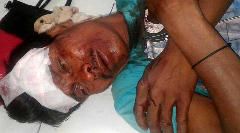 South Dinajpur: BJP candidate's husband allegedly attacked by TMC In Gangarampur