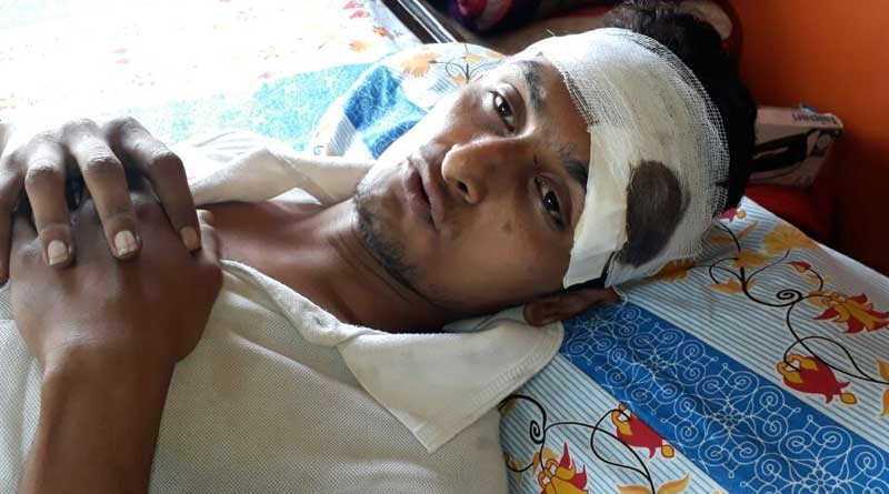 Uttarpara: A youth beaten for protesting against drinking on road