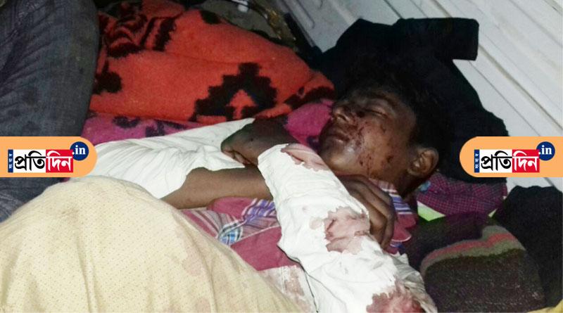 Relatives of Birbhum quarry blast victims clueless about future
