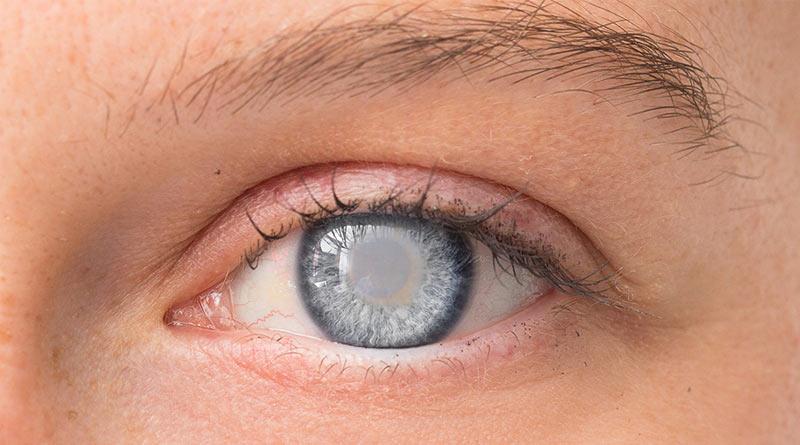 diabitic-eye