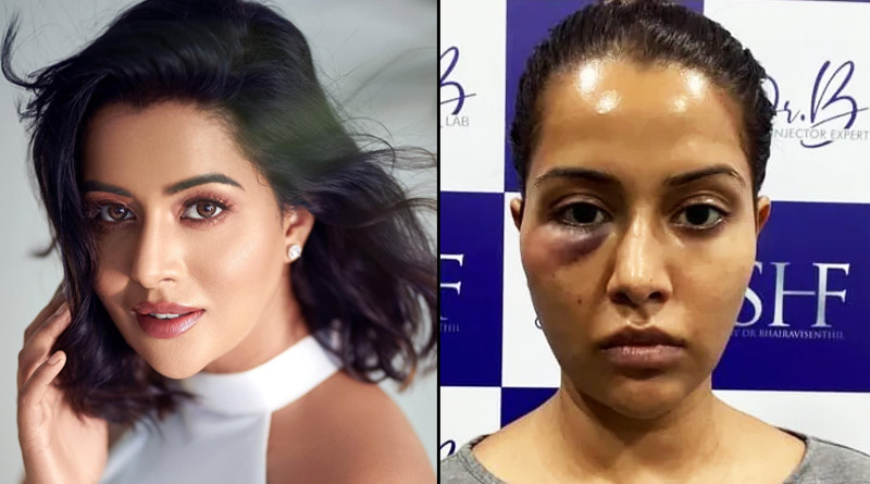 Tamil actress Raiza Wilson says she was 'forced' to undergo dermatological treatment, shares her photo after it goes wrong | Sangbad Pratidin