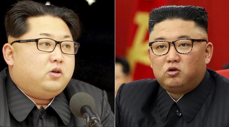 North Korean's worried about Kim Jong Un's health | Sangbad Pratidin