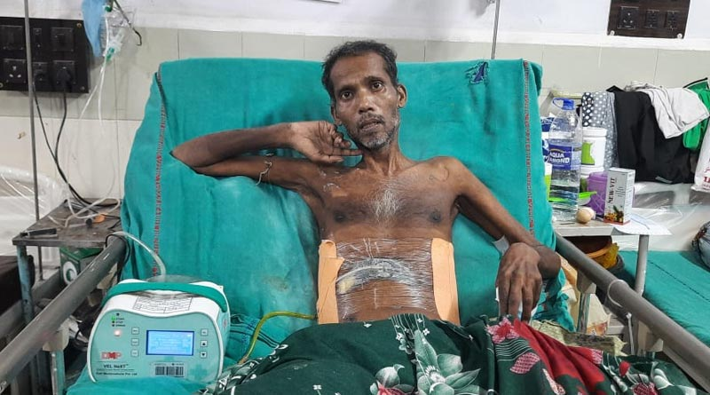 Kolkata's NRS hospital successfully operate to save a life | Sangbad Pratidin