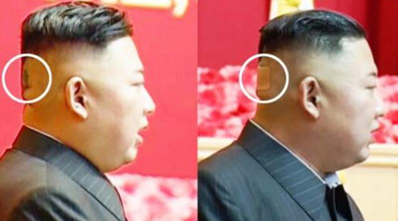 Bandage on back of North Korean dictator Kim Jong Un's head fuels rumours। Sangbad Pratidin