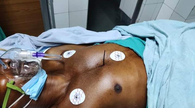 SSKM hospital gives arrow struck elderly man new life | Sangbad Pratidin