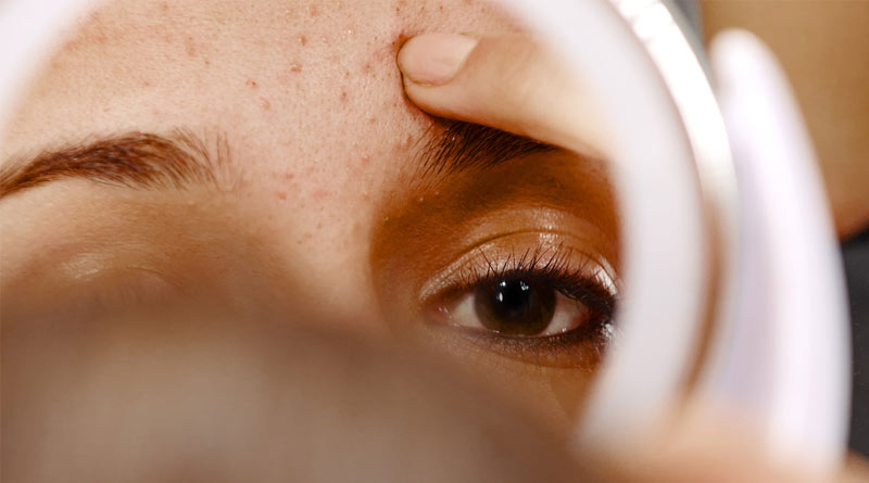 Skin Care Tips: How to avoid pimple during periods