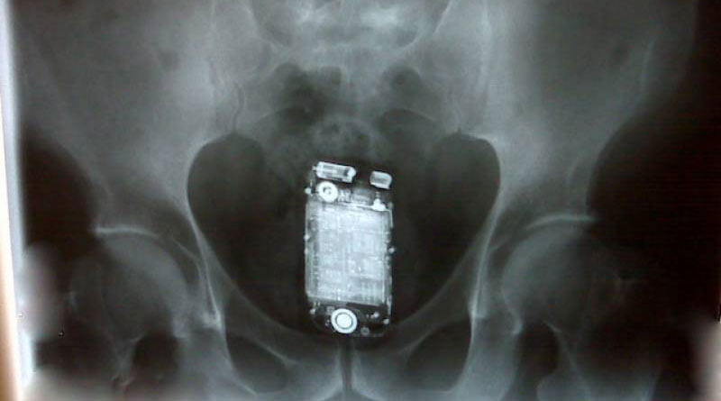 Man swallowed Mobile phone six months ago, removed after surgery | Sangbad Pratidin
